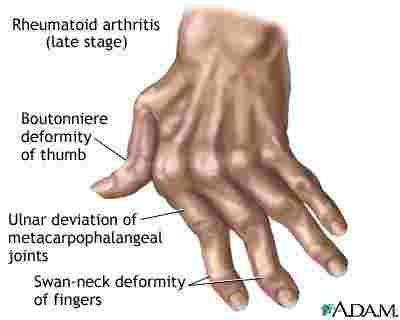 rheumatoid